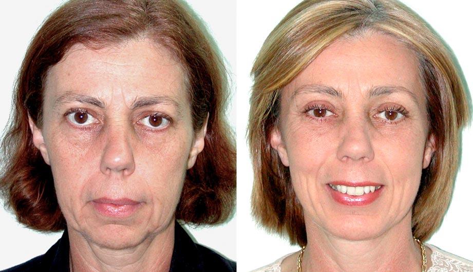 Trends in Facial Surgery: Social Media Dominates